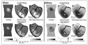 ECG Imaging of electrophysiologically abnormal substrates in infarcted hearts