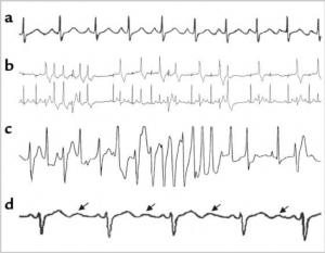 Dr. Tristani identifies several novel potassium channel mutations