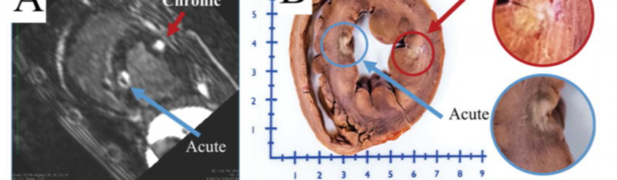 Predicting Edema and Chronic Lesion Size