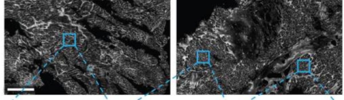 End-stage human heart failure induces development of sheet-like invaginations of the cell membrane